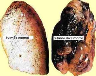 Pulmão do fumante